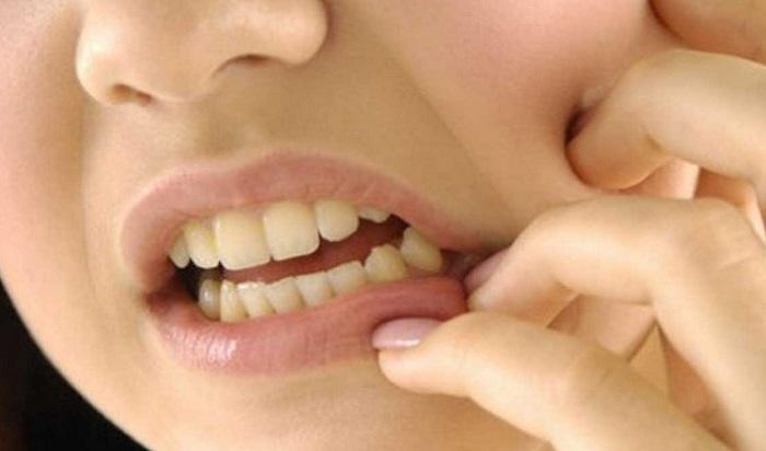 Minyak Tawon Untuk Mengobati Sakit Gigi